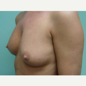 35-44 year old woman treated with Breast Augmentation before 3167935