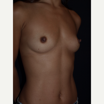 25-34 year old woman treated with Breast Augmentation before 3082379