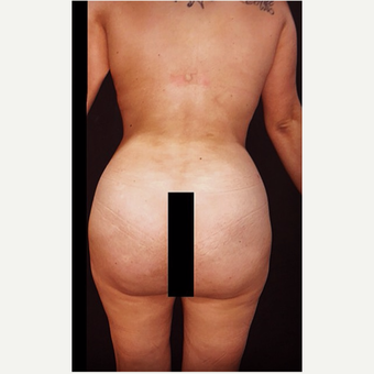 18-24 year old woman treated with Liposuction after 3672447