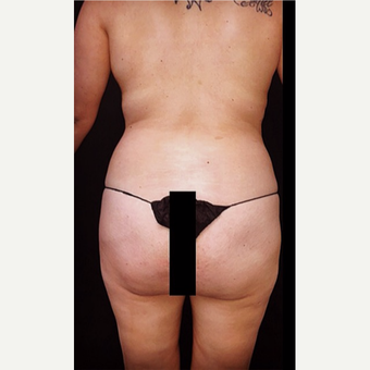 18-24 year old woman treated with Liposuction before 3672447