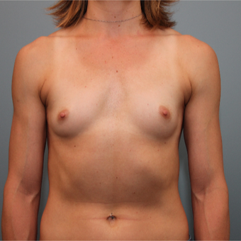 34 year old woman had Breast Augmentation before 3390896