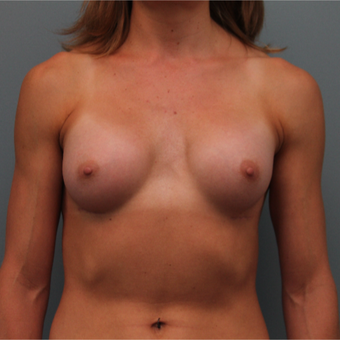 34 year old woman had Breast Augmentation after 3390896