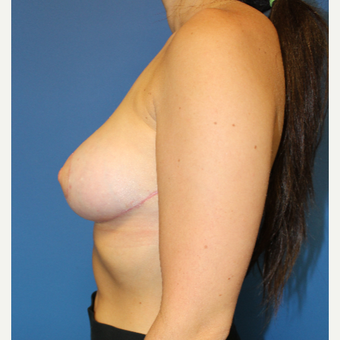 25-34 year old woman treated with Breast Reduction after 3459495