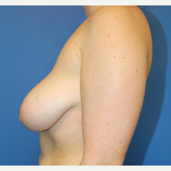 25-34 year old woman treated with Breast Reduction before 3459495