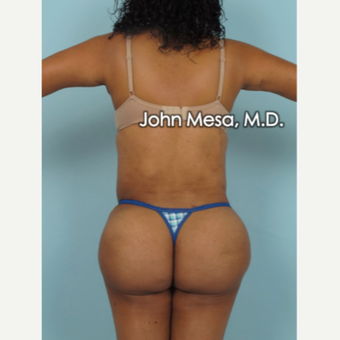 45-54 year old woman treated with Brazilian Butt Lift after 3777641