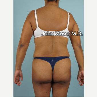 45-54 year old woman treated with Brazilian Butt Lift before 3777641