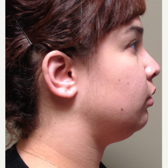 25-34 year old woman treated with Kybella before 3565643