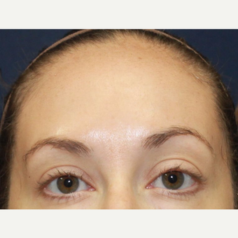 35-44 year old woman treated with Botox after 3520270