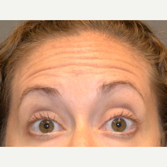 35-44 year old woman treated with Botox before 3520270