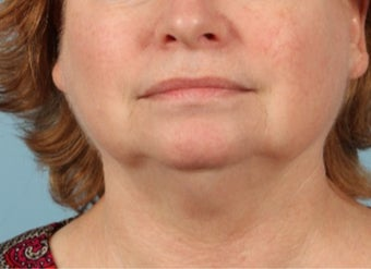 55-64 year old woman treated with Pulsed Dye Laser after 3617377