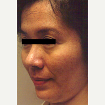 25-34 year old woman treated with Chemical Peel before 3543307