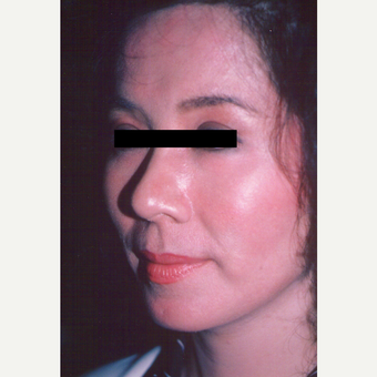 25-34 year old woman treated with Chemical Peel after 3543307