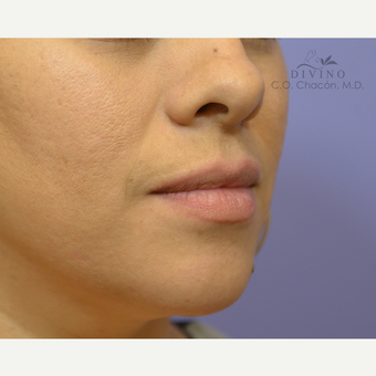 25-34 year old woman treated with Lip Implants before 3391502