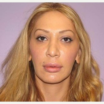 35-44 year old woman treated with Laser Resurfacing after 2833313