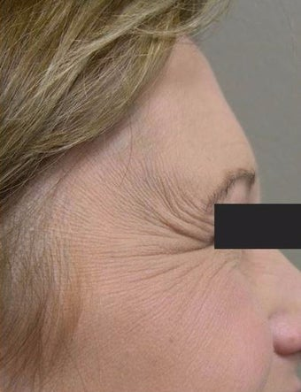 35-44 year old woman treated with Botox 1737206