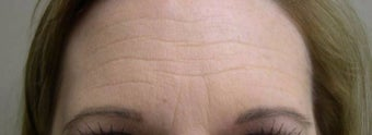 35-44 year old woman treated with Botox before 1737206