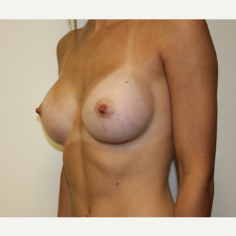 Breast Augmentation after 3417971