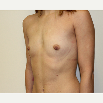 Breast Augmentation before 3417971