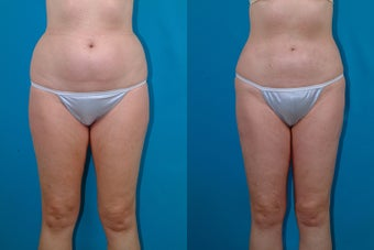 54-year-old woman treated with Liposuction. before 3287590