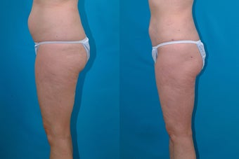 54-year-old woman treated with Liposuction. after 3287590