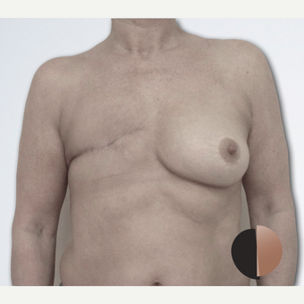 55-64 year old woman treated with Breast Reconstruction before 2507657