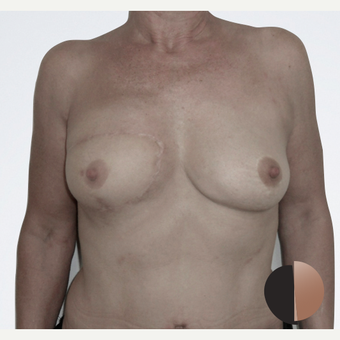 55-64 year old woman treated with Breast Reconstruction after 2507657