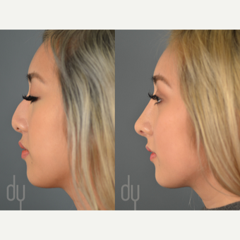 18-24 year old woman treated with Asian Rhinoplasty before 3129815