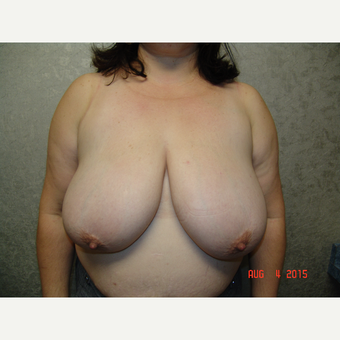 45-54 year old woman treated with Breast Reduction before 3220532