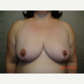 45-54 year old woman treated with Breast Reduction after 3220532