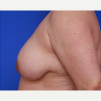 34- year old woman treated with Liposuction to her Breasts before 3583815