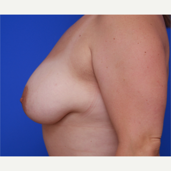 34- year old woman treated with Liposuction to her Breasts after 3583815