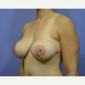 25-34 year old woman treated with Breast Lift with Implants before 3386476