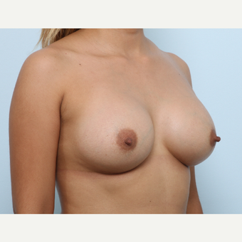 Breast Augmentation after 3345242