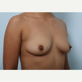 Breast Augmentation before 3345242