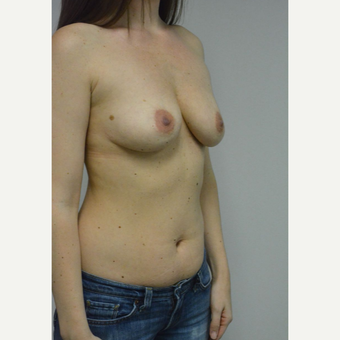 25-34 year old woman treated with Sientra Breast Implants before 3481807