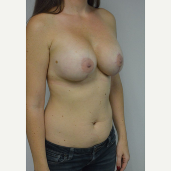 25-34 year old woman treated with Sientra Breast Implants after 3481807