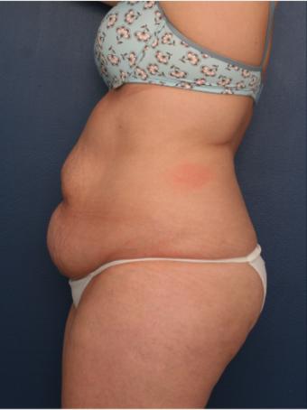 25-34 year old woman treated with Tummy Tuck before 3699388