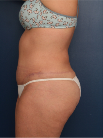 25-34 year old woman treated with Tummy Tuck after 3699388