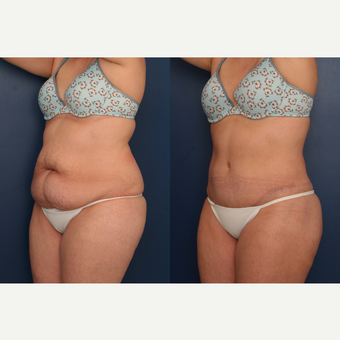 25-34 year old woman treated with Tummy Tuck 3699388