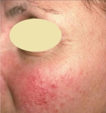 25-34 year old woman treated with Rosacea Treatment before 2975758