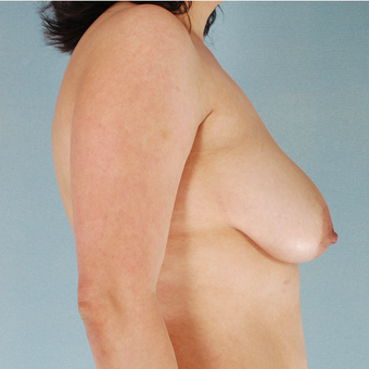 Breast Lift with Implants before 3033018