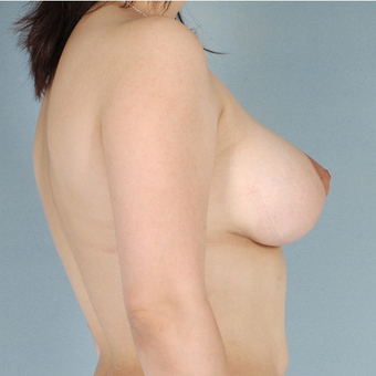 Breast Lift with Implants after 3033018