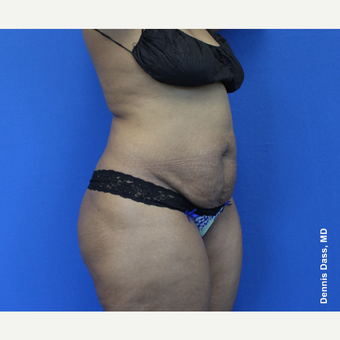 25-34 year old woman treated with Tummy Tuck before 3679763