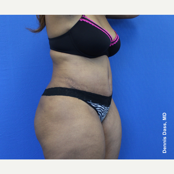 25-34 year old woman treated with Tummy Tuck after 3679763