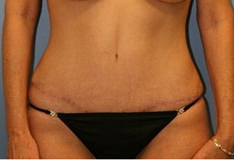 45-54 year old woman treated with Tummy Tuck after 1720413