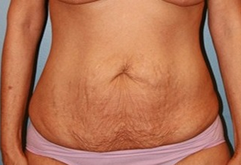 45-54 year old woman treated with Tummy Tuck before 1720413