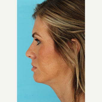 25-34 year old woman treated with Rhinoplasty before 3691003
