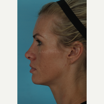 25-34 year old woman treated with Rhinoplasty after 3691003
