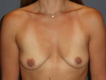 31 Year Old Female Desiring Breast Augmentation before 986873
