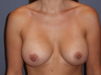 31 Year Old Female Desiring Breast Augmentation after 986873